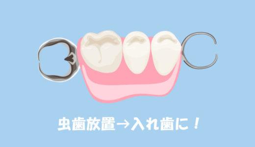 体験談!虫歯を1年以上放置し30代で入れ歯に…歯科へ行けず悩むあなたへ届け!